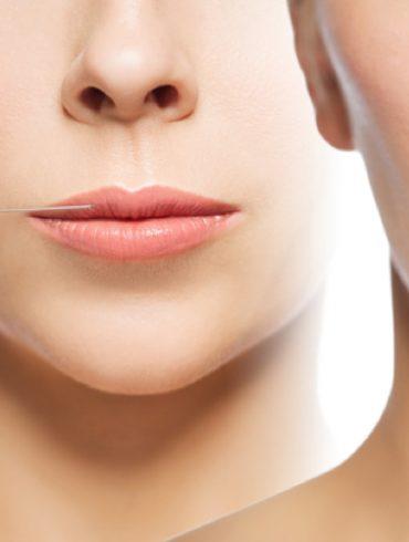 dunne lippen
