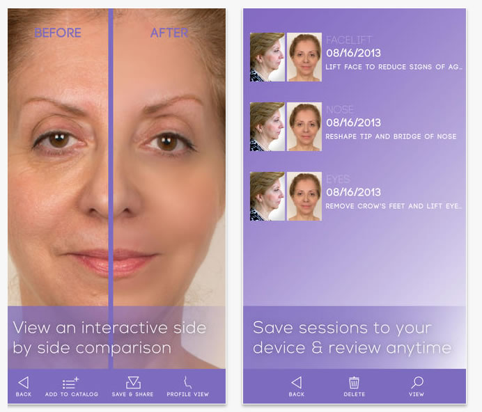 facelift app